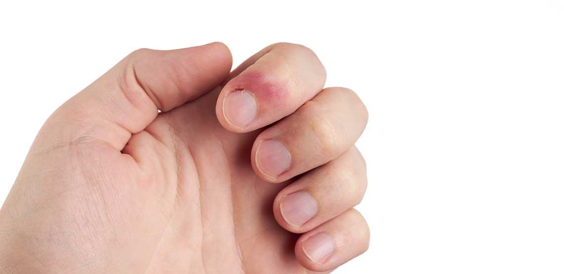 An infected hangnail.