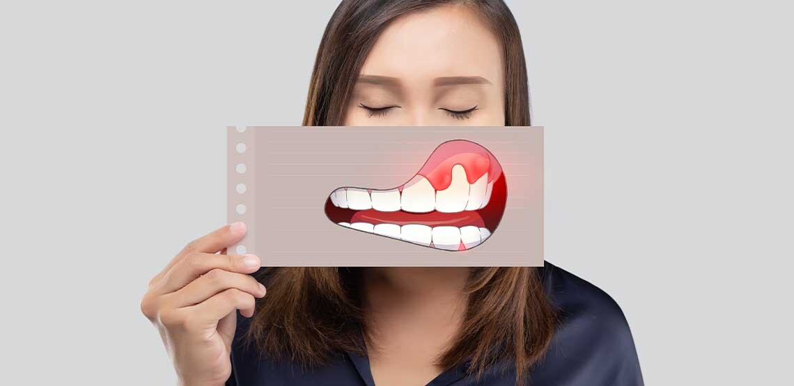 A young woman holding up a picture in front of her mouth of a cartoon close-up of teeth and gums.