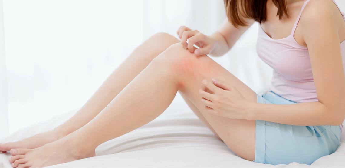 Woman scratching petechiae on leg